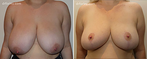 Woman's Breast, Before and After Treatment photo, front view, patient 1