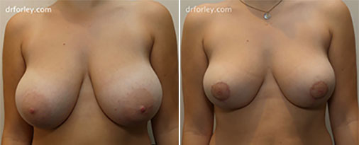 Woman's Breast, Before and After Treatment photo, front view, patient 2