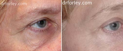 Patient face, before and after Eyes treatment, oblique view