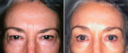 Woman's face, before and after Nose Surgery Treatment, female nose patient 1