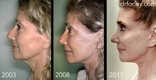 Facelift Photo: Woman's face in 2003/2008/2017 years, After Treatment, left view