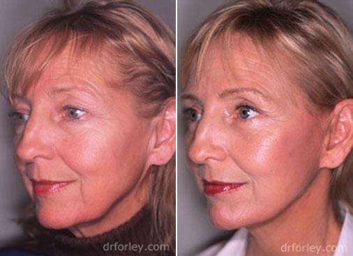 Facelift Photo: Woman's face After Treatment, oblique left view, patient 1