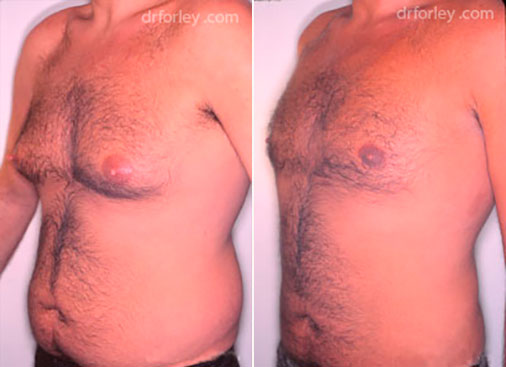 Male body, before and after liposuction treatment, oblique view, patient 1