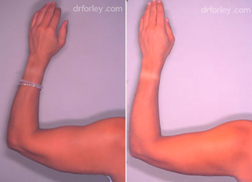 Woman's hand, before and after liposuction treatment, back view, patient 2