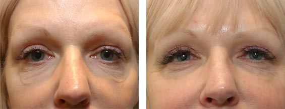 Female face, before and after Morpheus8 treatment, front view