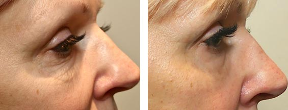 Female face, before and after Morpheus8 treatment, right side view