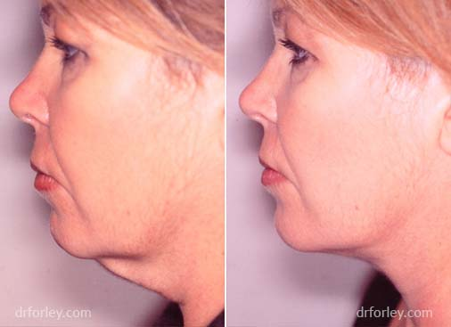 Woman's Face, before and after necklift treatment, neck, left side view, female patient 1