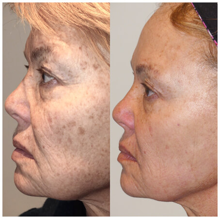 Woman's Face, Before and After using the Nordlys system, side view