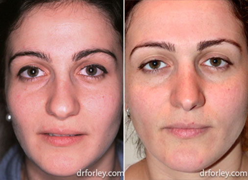 Woman's face, before and after Nose Surgery Treatment, female nose, patient 1