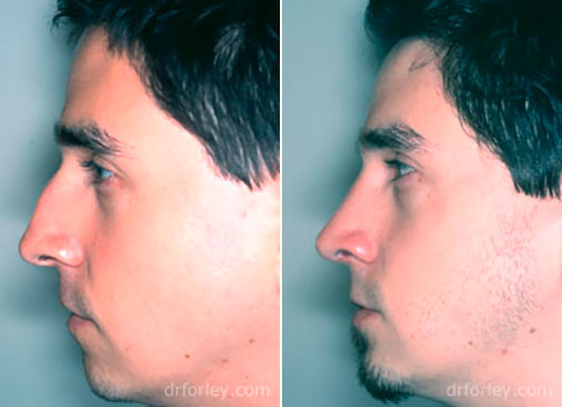 Male face, before and after Nose Surgery Treatment, male nose, side view, patient 2