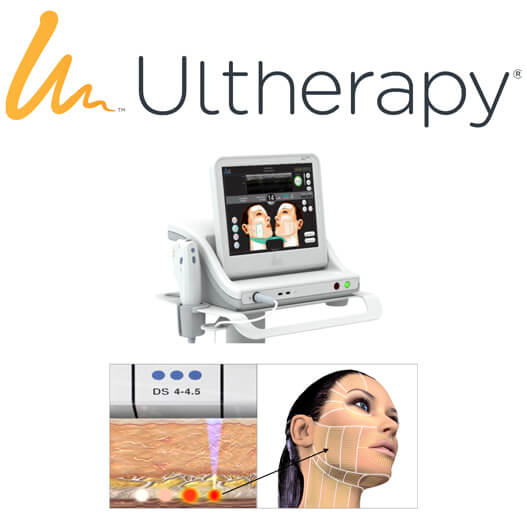 Ultherapy photo