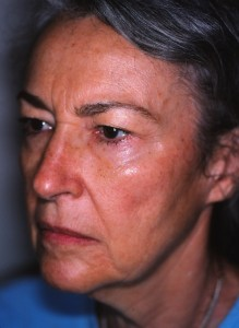 71 year old female prior to facelift, browlift, upper and lower eyelid surgery.