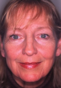 58 year old female prior to facelift and upper and lower eyelid surgery.