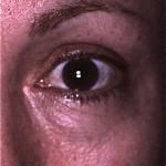 Tear trough at lower eyelid/cheek junction