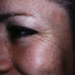 BOTOX® Before treatment with