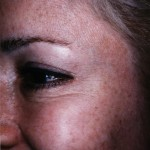 BOTOX® After treatment with