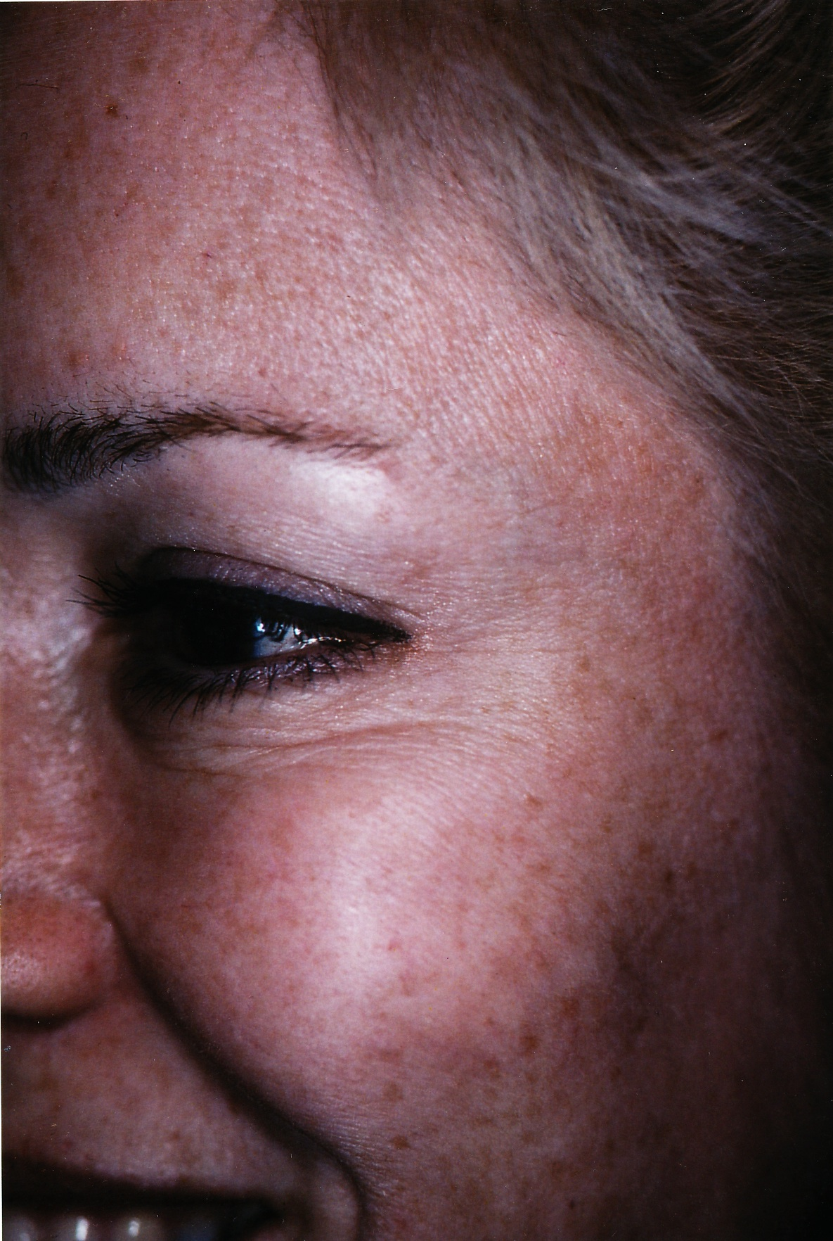 Woman's patient face, after Injectable Fillers treatment, oblique view