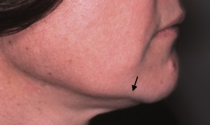 Early aging changes along jawline
