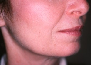 Before treatment with Sculptra®Aesthetic