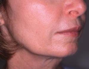 After treatment with Sculptra®Aesthetic