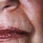Before treatment with an injectable filler