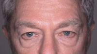 Eyelid Surgery 75 year old male before