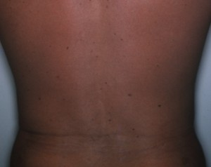 Liposuction 6 months after liposuction of the hips