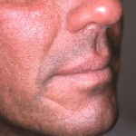 48 year old male before treatment