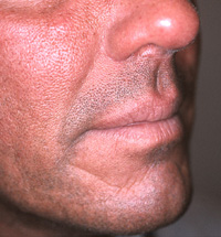 Male face, before Non Surgery Treatment, male nose, side view, patient 1