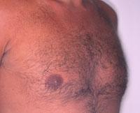 Gynecomastia 8 months after gynecomastia surgery