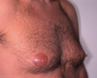 Gynecomastia 36 year old male before