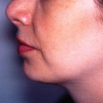 After Liposuction of Neck