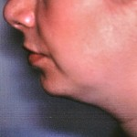 Before Liposuction of Neck