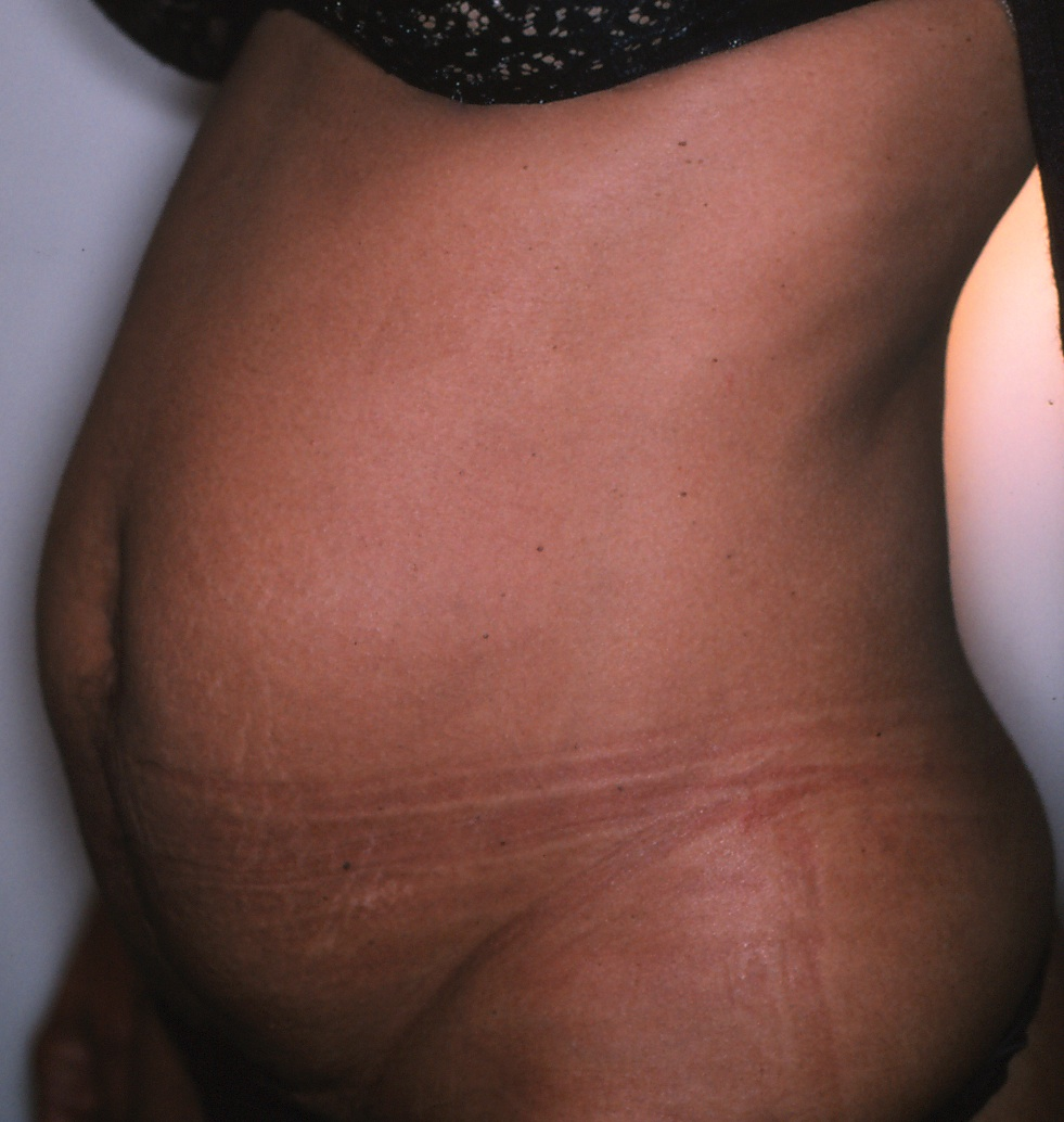 Blog - TUMMY TUCK OR LIPOSUCTION: WHICH ONE IS RIGHT FOR ME? Photo Female TUMMY TUCK, Before treatment photo, oblique view
