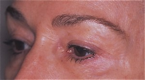 After Endoscopic Browlift
