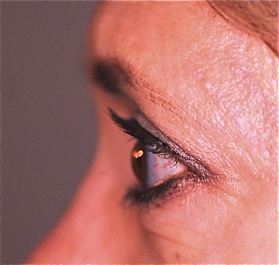THE SAGGING BROW: NON-SURGICAL & SURGICAL OPTIONS