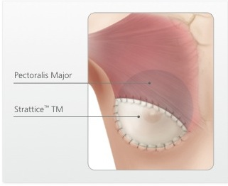 Blog - PART 1: ENHANCING BREAST SURGERY RESULTS WITH STRATTICE™ Photo PART 1: ENHANCING BREAST SURGERY RESULTS WITH STRATTICE