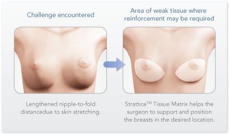 Blog - PART 2: ENHANCING BREAST SURGERY RESULTS WITH STRATTICE™- CASE EXAMPLES Photo