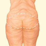BODY CONTOURING BEFORE WEIGHT LOSS SURGERY