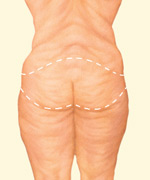 Blog - BODY CONTOURING AFTER WEIGHT LOSS SURGERY Photo