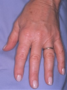 After - HAND REJUVENATION