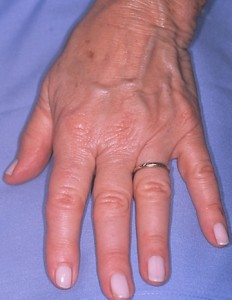 Before - HAND REJUVENATION