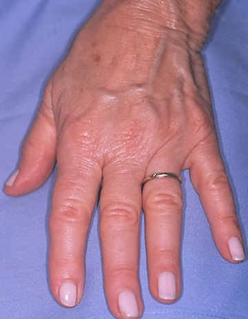Blog - -HAND REJUVENATION Photo