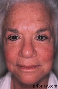 68 year old female before treatment
