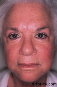 68 year old female 7 months following Fraxel®