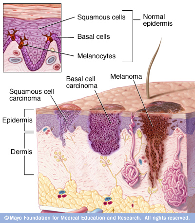 Blog - SKIN CANCER: WHAT YOU NEED TO KNOW Photo SKIN CANCER: WHAT YOU NEED TO KNOW