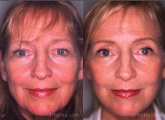 Before & After  FACELIFTS