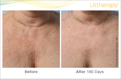 Blog - ULTHERAPY TREATMENT OF THE DÉCOLLETÉ Photo