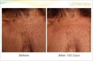 Before & After 180days ultherapy