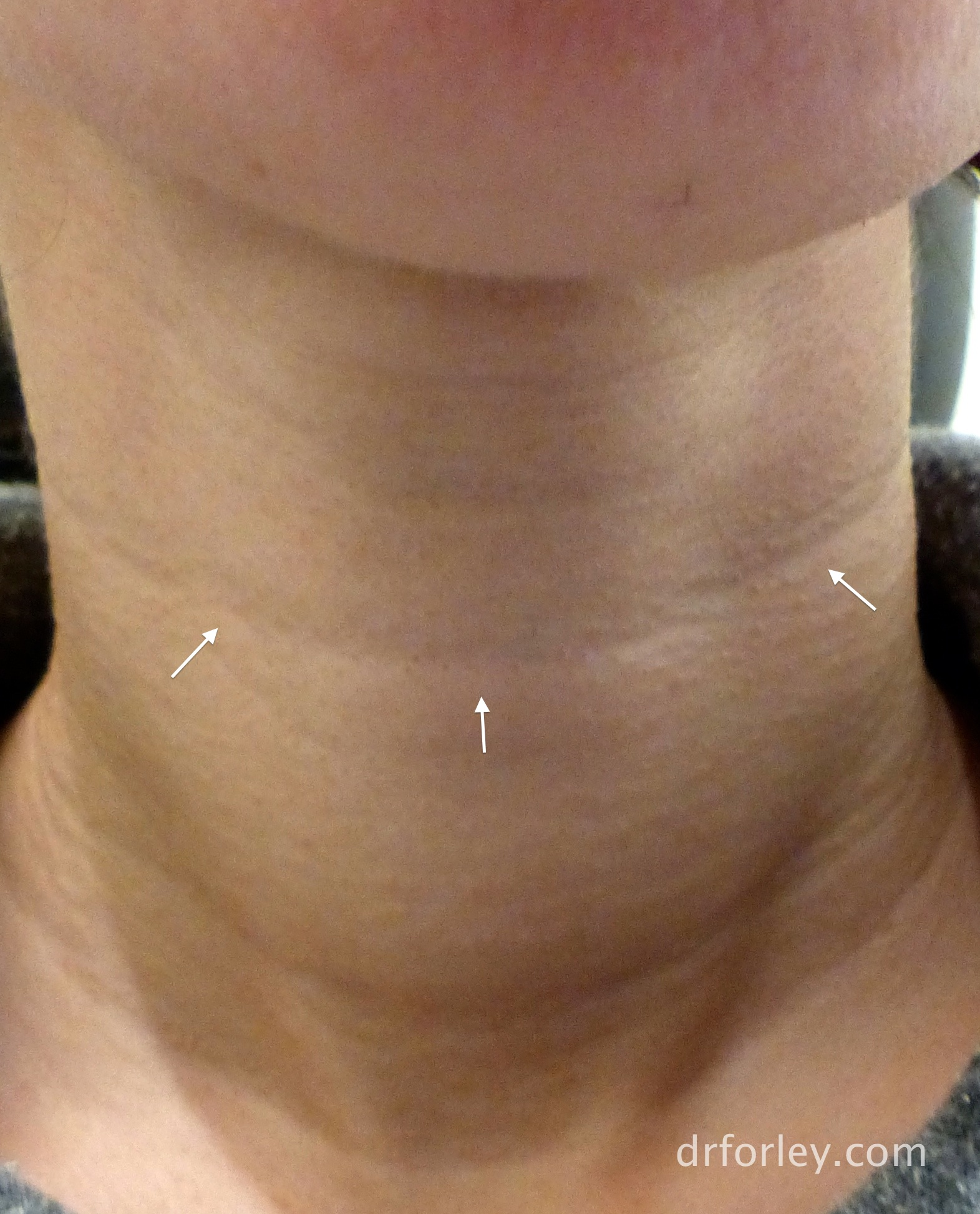 Blog - A NEW TREATMENT FOR NECK WRINKLES Photo